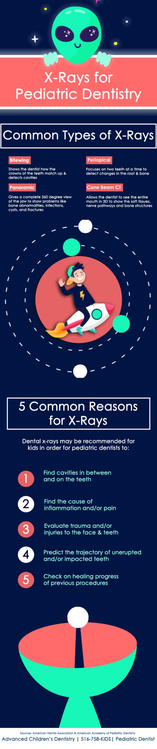 Inforgraphic about kids dental x rays